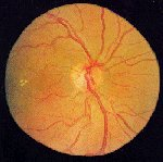 Retina - Netzhaut - augenundmehr.de